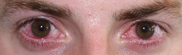 Bindehautzyste Treffpunkt Augenarzt