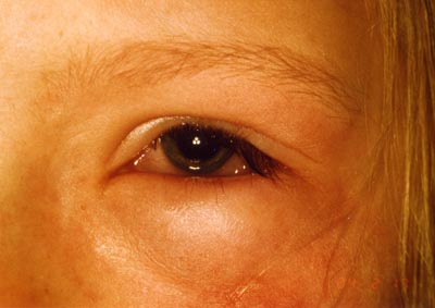 Allergische Reaktion am Auge (Chemosis)