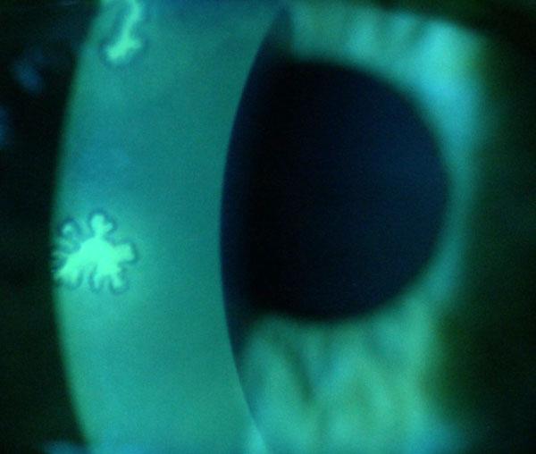 Im herpes immer auge wieder Augenherpes Symptome