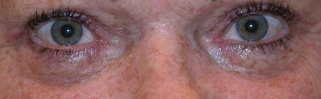 Augenringe Auge Online